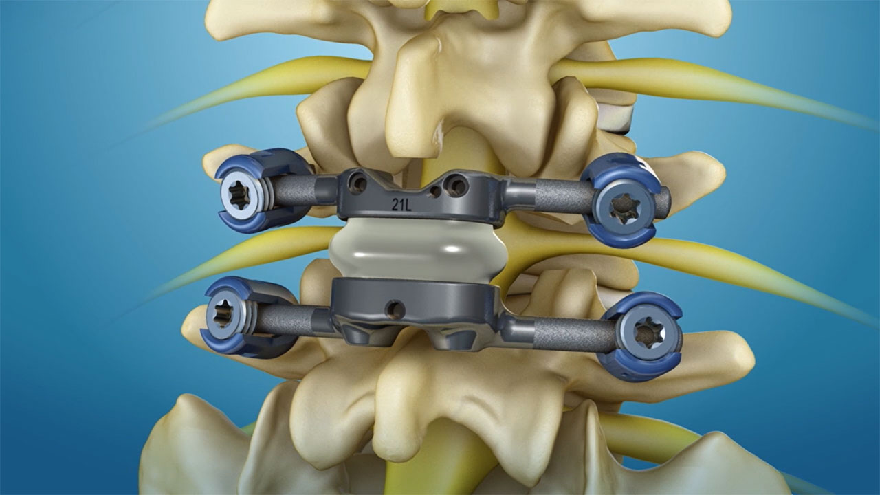 The TOPS facet arthroplasty system from Premia Spine has received Breakthrough Device Designation from the FDA. Developed to offer a new treatment option for patients suffering from spinal stenosis or spondylolisthesis, the system is designed to relieve debilitating lower back and leg pain while enabling long-term mobility, stability and durability after decompression. TOPS has been proven in early clinical studies to deliver immediate and sustained pain relief and improvement in patient quality of life, and is currently the subject of a pivotal clinical trial under an investigational device exemption from the FDA. Disclaimer: The TOPS System is limited by Federal (or United States) law to investigational use only.