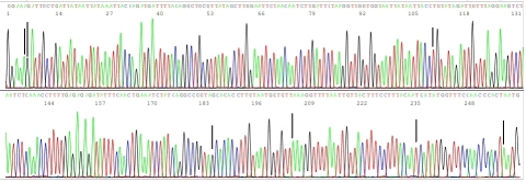 This routine DNA sequence electropherogram covering the ACE2 receptor binding domain shows 7 vertical black bars from left to right, pointing to 7 key nucleotides identified as A, G, T, G, A, T and A in the S gene of SARS-CoV-2 in a nasopharyngeal swab specimen taken from a patient with acute respiratory infection. The nucleotide A pointed by the 5th bar is a mutated base, indicating an E484K amino acid mutation (G>A nucleotide mutation). All other 6 black bars point to wildtype bases, confirming the lack of K417N, K417T, L452R, S477N, E484Q, S494P and N501Y mutations in this virus isolate. All known newly emerging SARS-CoV-2 variants of concern are associated with at least one of the 8 amino acid mutations identified in this sequence. Specimens harboring any of these 8 amino acid mutations will be further sequenced for A67V, Δ69/70, T95I, Δ144Y, Y145del, H146del, W152C and V1176F mutations for B.1.1.7, B.1.351, B.1.427, B.1.429, B.1.525, B.1.526, B.1.617, B.1.168, P.1 and P.2 variant differentiation. Timely recognition of B.1.617 and B.1.168 is especially important in view of the recent rising number of these two variants reported in India, said Dr. Sin Hang Lee, director of Milford Molecular Diagnostics Laboratory. (Photo: Business Wire)