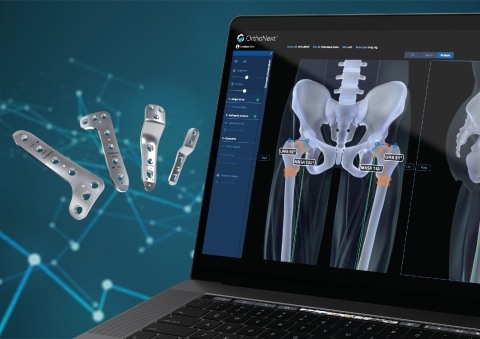 The OrthoNext™ digital platform enables deformity analysis and preoperative planning for pediatric orthopedic procedures with the JuniOrtho Plating System. (Photo: Business Wire)