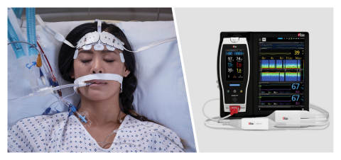 Masimo Root® with O3® Regional Oximetry and SedLine® Brain Function Monitoring (Graphic: Business Wire)