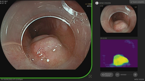 """Provided by Professor Pradeep Bhandari: """"Once the neoplasia is found, the system takes a still image and transfers it to the top right corner of a screen as a reference image for endoscopists. It also has a heat map which shows the area of the AI-predicted neoplasia."""" (Graphic: Business Wire)"""