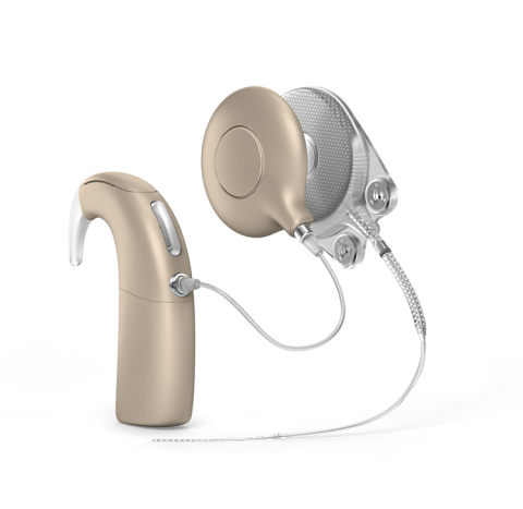 Oticon Medical announces that the US Food and Drug Administration (FDA) has granted Premarket Approval (PMA) for the Neuro Cochlear Implant System to treat severe to profound sensorineural hearing loss.  (Photo: Business Wire)