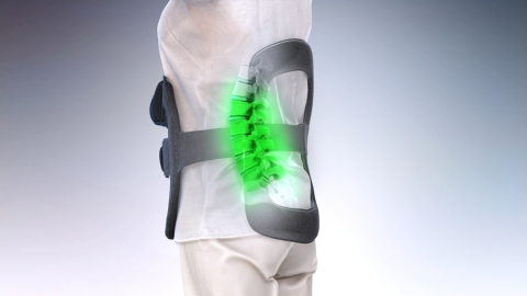 Illustration of the Orthofix SpinalStim Bone Growth Therapy device for patients recovering from lumbar fusion surgery. (Photo: Business Wire)