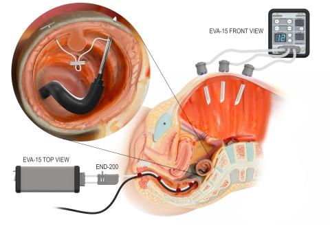Example of a hybrid laparo-endoscopc surgical procedure using  Palliare's EVA15 insufflator pltform (Photo: Business Wire)