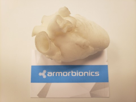 3D printed infant heart model manufactured for Armor Bionics by Shapeways transforms surgical pre-planning. (Photo: Business Wire)