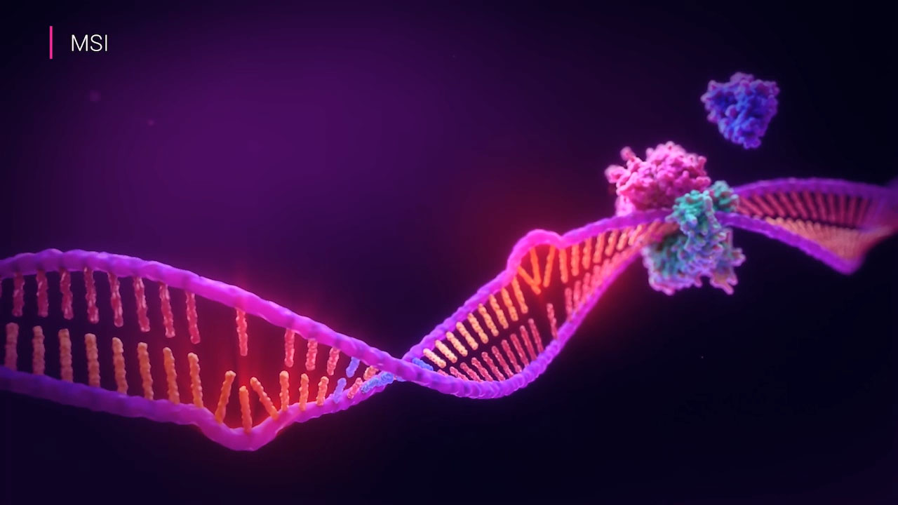 Microsatellite instability (MSI) is a form of genomic instability caused when too many or too few repeating bases, called microsatellites, occur during DNA replication and the body's mismatch repair system fails to correct these errors. MSI status is used to screen for Lynch syndrome.