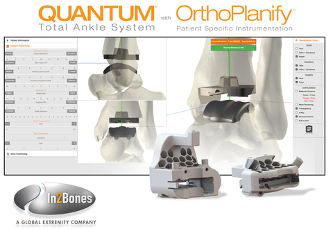 In2Bones' Orthoplanify software integrates patient CT scans and X-rays, enabling surgeons to easily modify, adjust, and manipulate placement of the QUANTUM Total Ankle System implant prior to surgery. During surgery, the Total Ankle System's custom 3D-printed cutting guides save surgeons multiple steps and allow for precision bone cuts and more accurate implant alignment when compared with manual instrumentation. (Graphic: Business Wire)