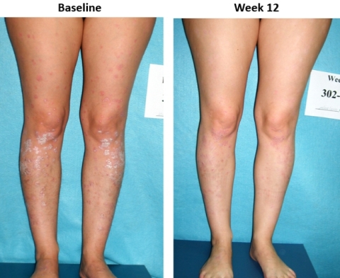 Image from prior Phase II clinical trial of Piclidenoson of patient's skin before treatment and at week 12 following treatment (Photo: Business Wire)