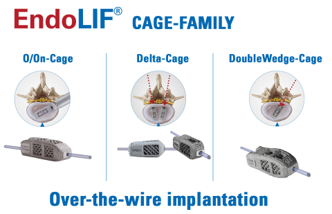The complete joimax® EndoLIF® product portfolio consists of the Delta-Cage, the DoubleWedge-Cage, and the O/On-Cage. (Photo: Business Wire)