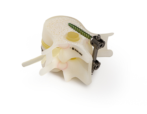 Anatomical model of spinal pedicel screw insertion (Photo: Business Wire)