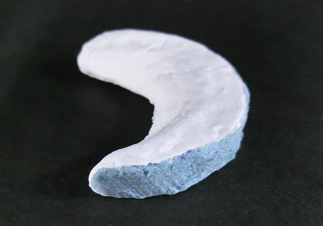 Figure: Biodegradable scaffold for meniscal repair (Photo: Business Wire)