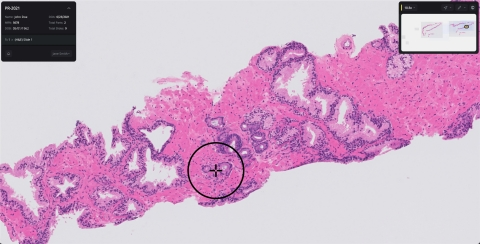 Paige Prostate is designed to identify foci that could indicate cancer, enabling fast, accurate diagnoses. (Photo: Paige)