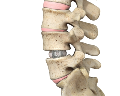Spineology's Duo Ti™ Expandable Interbody Fusion Procedure combines Spineology's proprietary mesh technology with porous titanium to deliver a large, anatomy conforming implant via anatomy-conserving lateral decubitus and prone approaches. (Photo: Business Wire)