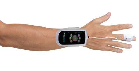 Caretaker Medical's FDA-cleared VitalStream™, a wireless platform for continuous noninvasive blood pressure and hemodynamic monitoring. (Photo: Business Wire)