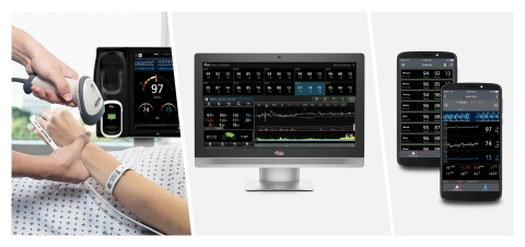 Masimo Patient SafetyNet™ with Root® and Replica™ (Photo: Business Wire)
